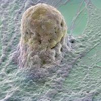 стовбурові клітини